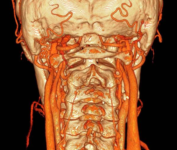 Vertebral Artery Photograph - Neck Blood Vessels by K H Fung/science Photo Library