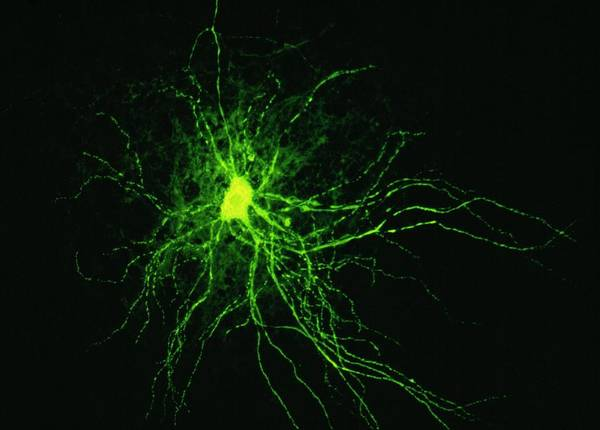 Nerve Cell Photograph - Nerve Cell by Cnri/science Photo Library