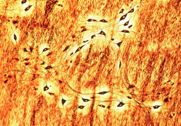 Nerve Cell Photograph - Nerve Cells by Innerspace Imaging/science Photo Library