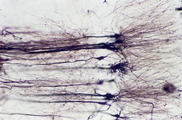 Cerebrum Photograph - Nerve Cells by Overseas/collection Cnri/spl