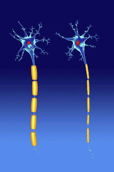 Myelin Wall Art - Photograph - Nerve Cells by Roger Harris/science Photo Library