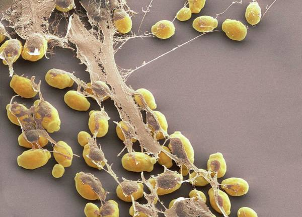 Trapping Photograph - Nets Trapping Yeast Spores by Prof Matthias Gunzer/science Photo Library