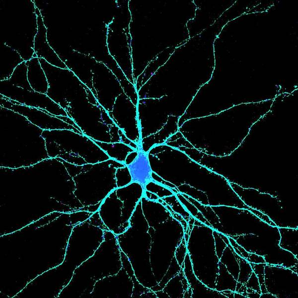 Dendrite Wall Art - Photograph - Neuron by Dr. Chris Henstridge