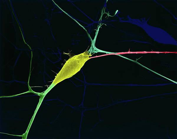 Nervous System Photograph - Neuron Growing In Culture by Dennis Kunkel Microscopy/science Photo Library