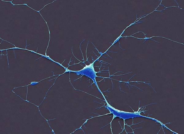 Axon Wall Art - Photograph - Neurones by Steve Gschmeissner/science Photo Library