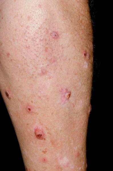 Dark Skin Photograph - Nodular Prurigo On The Skin by Dr P. Marazzi/science Photo Library