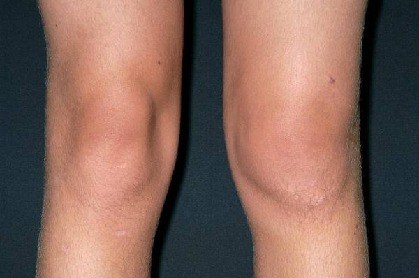 Wall Art - Photograph - Normal And Swollen Knees by Dr P. Marazzi/science Photo Library