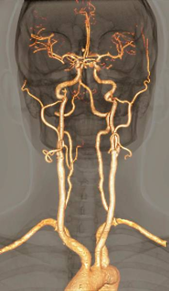 Cerebral Photograph - Normal Arteries by Zephyr/science Photo Library