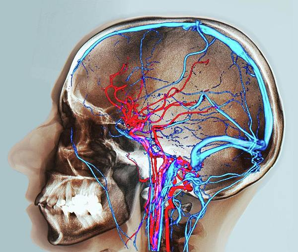 Cerebral Angiogram Photograph - Normal Brain Blood Supply by Zephyr/science Photo Library