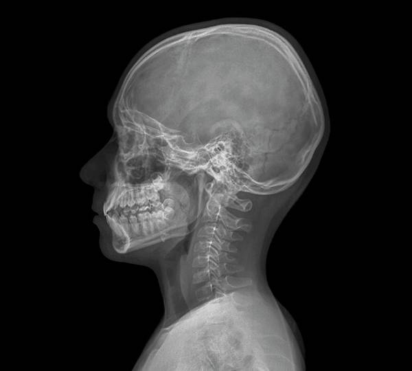 Xrays Wall Art - Photograph - Normal Child's Head by Zephyr/science Photo Library