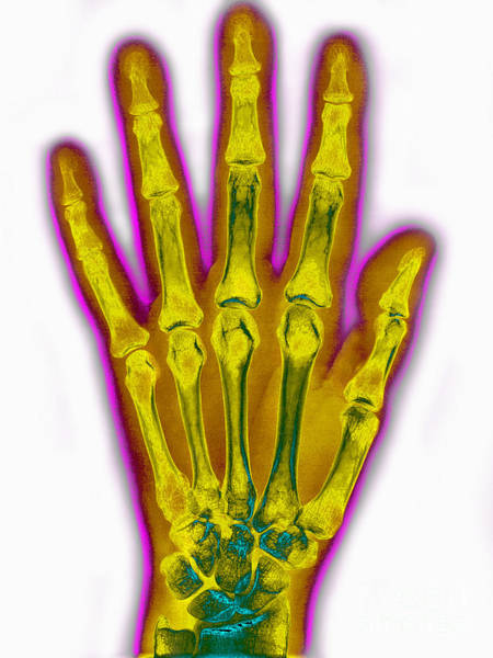 Photograph - Normal Hand X-ray by James Cavallini