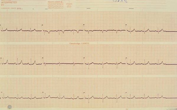 Wall Art - Photograph - Normal Heartbeat by Science Photo Library.