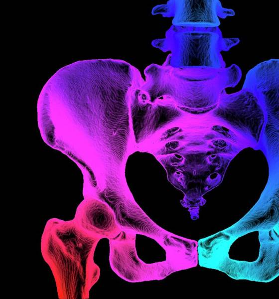 Wall Art - Photograph - Normal Hip And Pelvis by K H Fung/science Photo Library