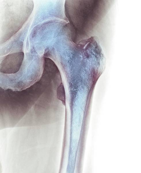 Xrays Wall Art - Photograph - Normal Hip by Dr P. Marazzi/science Photo Library