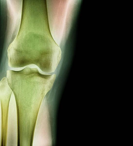 Xrays Wall Art - Photograph - Normal Knee by Dr P. Marazzi/science Photo Library