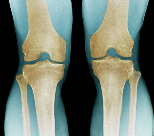 Xrays Wall Art - Photograph - Normal Knees by Zephyr/science Photo Library