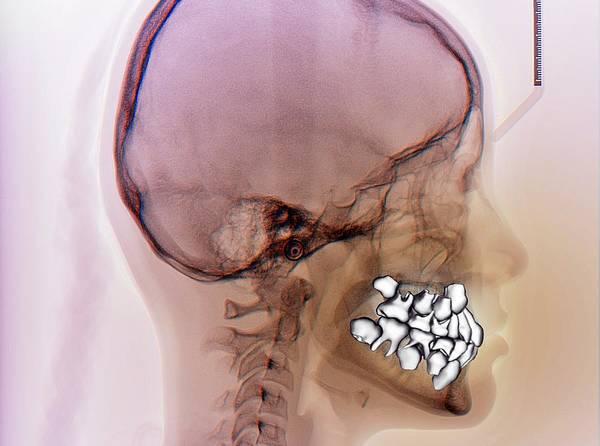 False Wall Art - Photograph - Normal Teeth by Zephyr