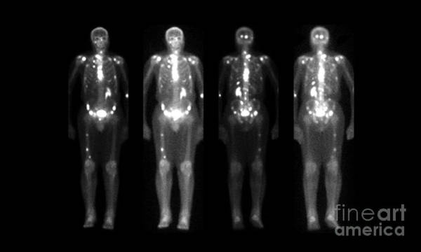Photograph - Nuclear Bone Scans Of Cancer Patients by Medical Body Scans