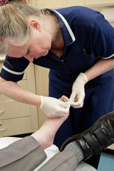 Dressing Photograph - Nurse Dressing A Patient's Toe by Life In View/science Photo Library
