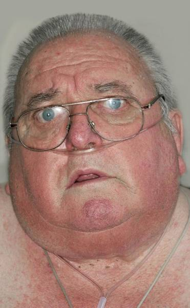 Sleep Disorder Photograph - Obese Man With Sleep Apnoea And Copd by Dr P. Marazzi/science Photo Library