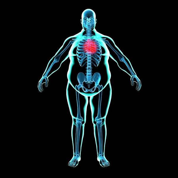 Organ Digital Art - Obese Mans Heart, Artwork by Science Photo Library - Roger Harris