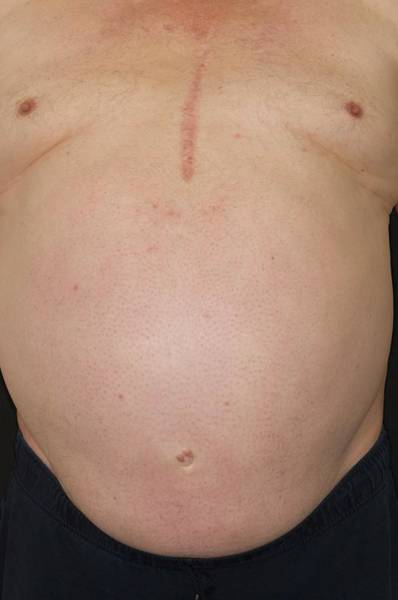Abdominal Photograph - Obesity In A Man by Dr P. Marazzi/science Photo Library