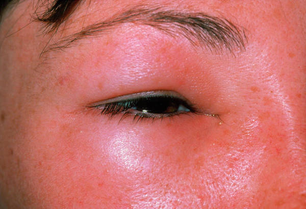 Bee Sting Photograph - Oedema Around The Eye Due To A Bee Sting by Dr P. Marazzi/science Photo Library