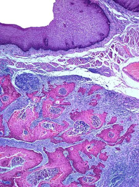 Carcinoma Wall Art - Photograph - Oesophageal Cancer by Steve Gschmeissner/science Photo Library