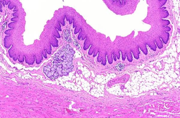 Histology Photograph - Oesophagus by Microscape/science Photo Library