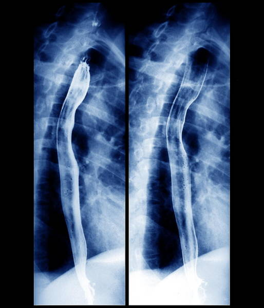 Radiograph Wall Art - Photograph - Oesophagus by Zephyr/science Photo Library
