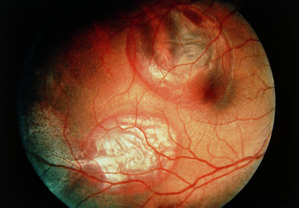 Eye Ball Photograph - Ophthalmoscope View Of Cricket Ball Eye Injury by Sue Ford/science Photo Library