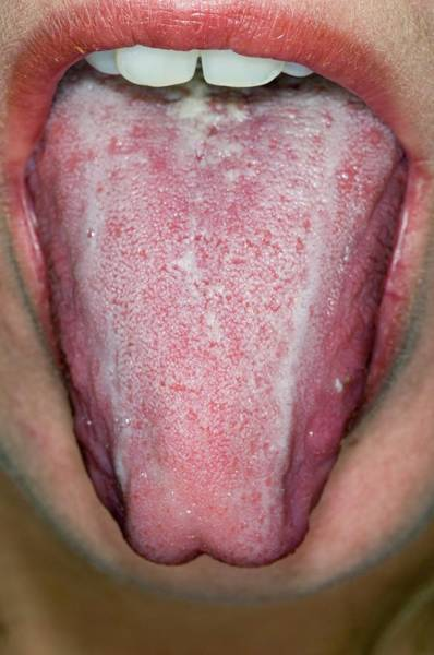 Wall Art - Photograph - Oral Thrush In An Alcoholic Patient by Dr P. Marazzi/science Photo Library