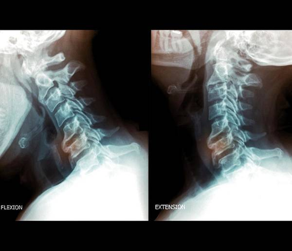 C7 Wall Art - Photograph - Osteoarthritis Of The Cervical Spine by Zephyr/science Photo Library