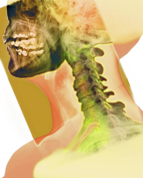 Vertebrae Photograph - Osteoarthritis Of The Neck by Dr P. Marazzi/science Photo Library