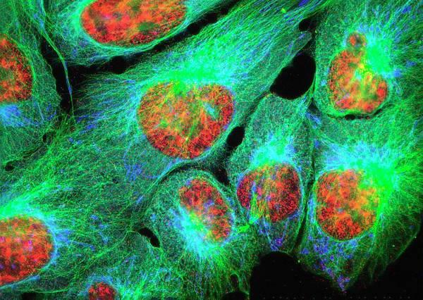 Organelle Photograph - Osteosarcoma Cells by Nancy Kedersha