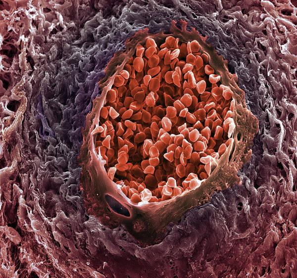 Wall Art - Photograph - Ovarian Cancer Blood Vessel by Steve Gschmeissner