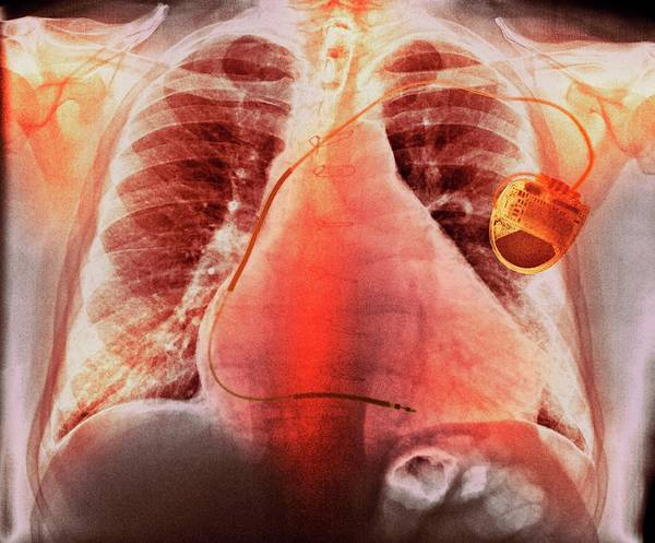 Chronic Wall Art - Photograph - Pacemaker In Heart Disease by Dr P. Marazzi