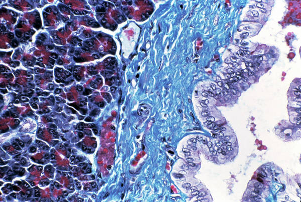Digestive Systems Photograph - Pancreas Tissue by Cnri/science Photo Library