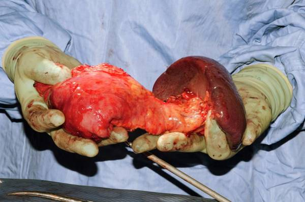 Surgery Photograph - Pancreatectomy And Splenectomy Surgery by Dr P. Marazzi/science Photo Library