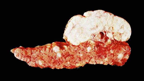 Neoplasm Photograph - Pancreatic Cancer by Cnri