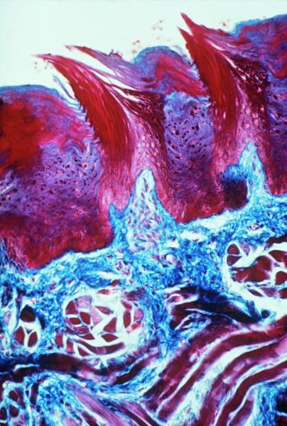 Micrography Wall Art - Photograph - Papillae On Tongue by Overseas/collection Cnri/spl