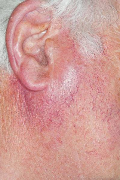 Inflammation Wall Art - Photograph - Parotid Gland Enlargement by Dr P. Marazzi/science Photo Library
