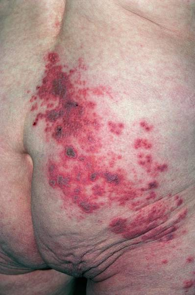 Shingles Photograph - Patient Lower Back Affected By Shingles by Dr P. Marazzi/science Photo Library