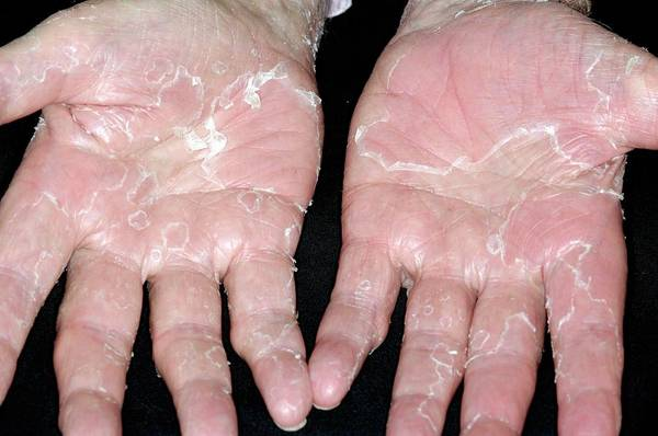 Peeling Photograph - Peeling Skin On Hands From Stress by Dr P. Marazzi/science Photo Library