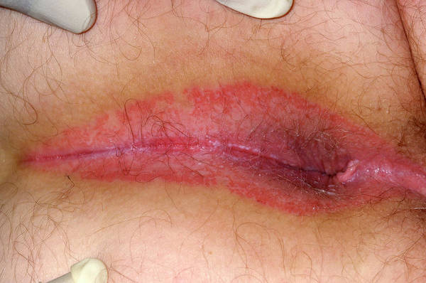 Inflammation Wall Art - Photograph - Perianal Dermatitis by Dr P. Marazzi/science Photo Library