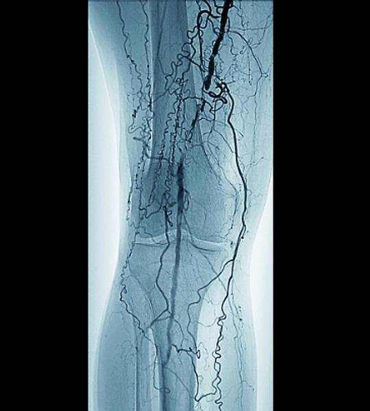 Radiological Photograph - Peripheral Vascular Disease In Diabetes by Zephyr/science Photo Library