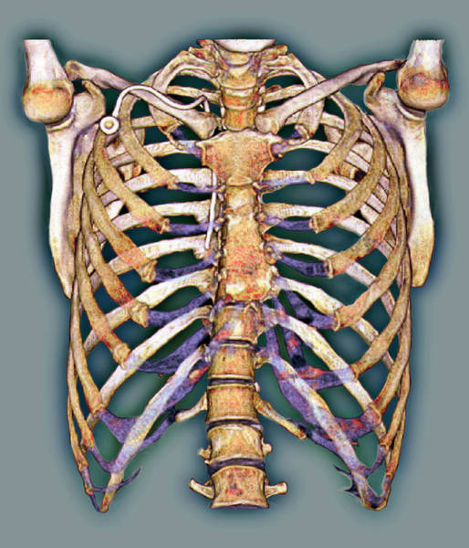 False Ribs Wall Art - Photograph - Permanent Chest Catheter by Zephyr/science Photo Library