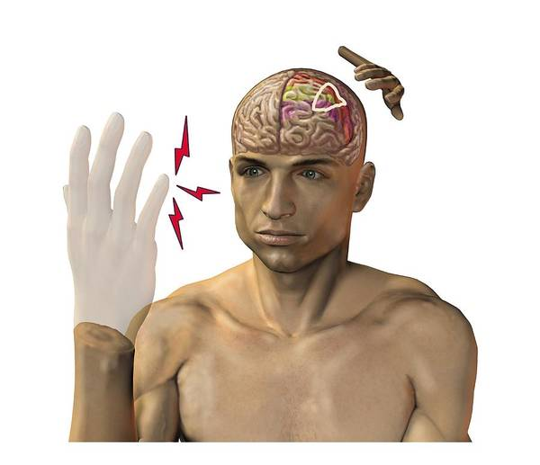 Motor Cortex Photograph - Phantom Pain After Amputation, Artwork by Science Photo Library