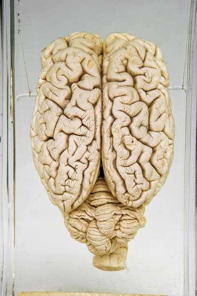 Cerebrum Photograph - Pig Brain by Ucl, Grant Museum Of Zoology