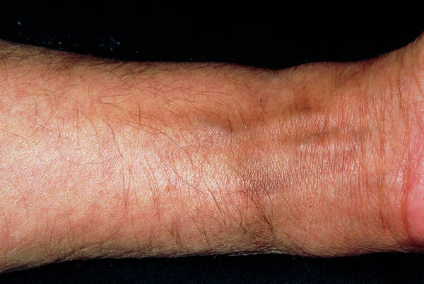 Wall Art - Photograph - Pigmentation In Man's Wrist Following Chemotherapy by Dr P. Marazzi/science Photo Library